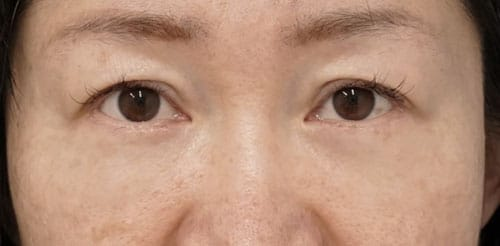 目の下たるみとり(ハムラ法) 3ヶ月後のAfterの写真