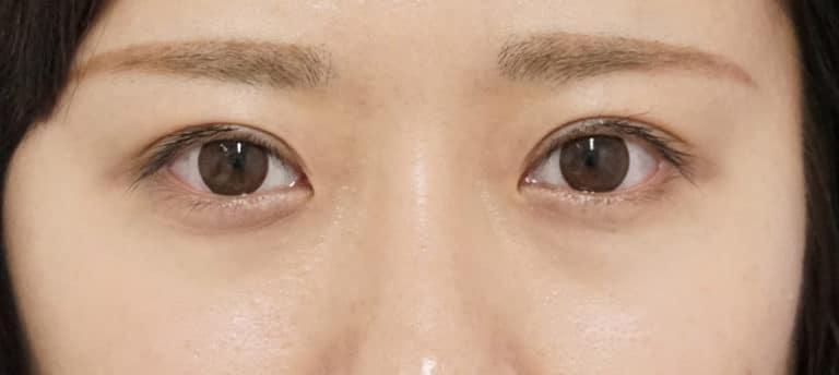 涙袋ヒアルロン酸 1週間後のBefore写真