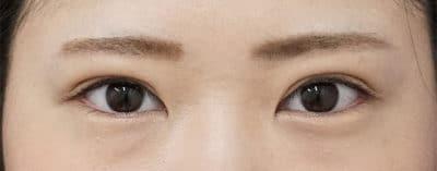全切開+眼瞼下垂(挙筋前転術) 半年後のAfterの写真