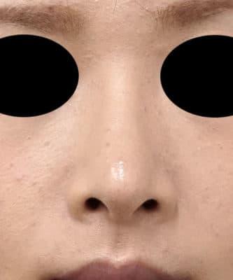 鼻尖縮小(3D法)、軟骨移植 半年後のAfterの写真