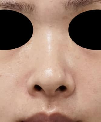 鼻尖縮小(3D法)、軟骨移植 半年後のBefore写真