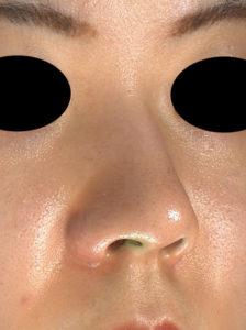 右斜め 手術前 鼻尖縮小(3D法)+軟骨移植+プロテーゼ