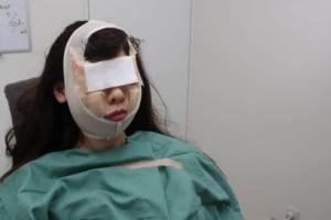 手術終了後のフェイスバンドで固定する様子