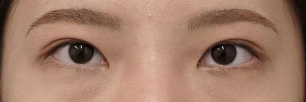 二重全切開 半年後 目を閉じたときの画像