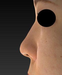 左側面 手術前 後鼻尖縮小(3D法)+軟骨移植+プロテーゼ