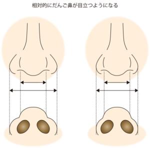 鼻翼縮小で鼻先が目立つイメージ
