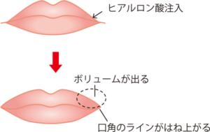 唇にヒアルロン酸を注入するイメージ