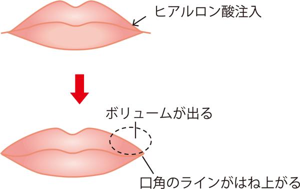 口角を上げるためのヒアルロン酸注入施術