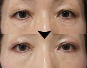 ベビーコラーゲンの症例写真