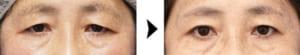 眉下切開の症例写真