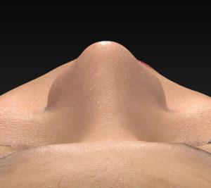上から 1ヶ月後 鼻尖縮小(3D法)+軟骨移植+プロテーゼ