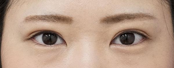 全切開、眼瞼下垂(挙筋前転術)症例写真 半年後