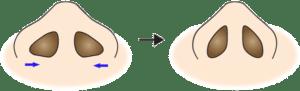 鼻翼縮小(内側法、フラップ法)のイメージ
