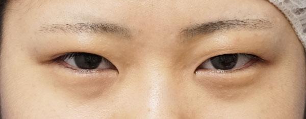 全切開、眼瞼下垂(挙筋前転術)症例写真 手術前