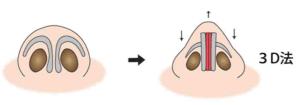 鼻尖縮小(3D法)のイメージ