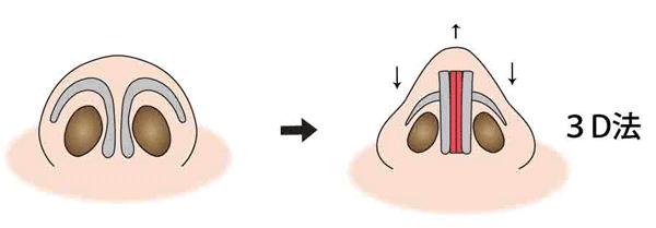 鼻尖縮小(3D法)イラスト