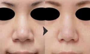 鼻翼縮小(内側法+外側法)の症例写真