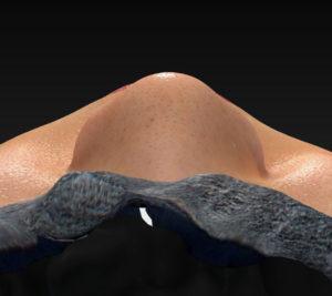 上から 手術前 鼻尖縮小(3D法)+軟骨移植+プロテーゼ