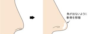鼻尖軟骨移植のイメージ