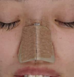 ギプスで固定している鼻