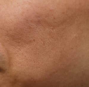 毛穴の目立つ肌