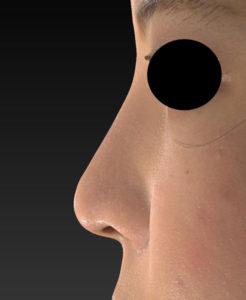 左側面 1ヶ月後 鼻尖縮小(3D法)+軟骨移植+プロテーゼ