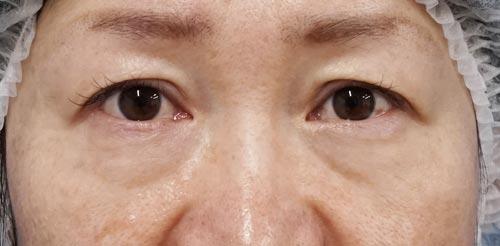 目の下たるみとり(ハムラ法) 手術前