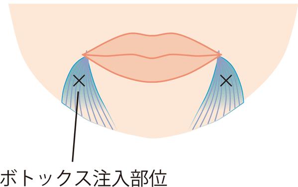 口角下制筋ボトックス。口角を上げる