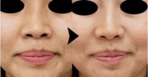 小鼻ボトックス症例写真