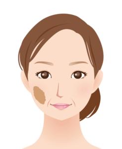 扁平母斑(茶色いあざ)のイメージ