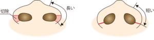鼻翼縮小(外側法)のイメージ