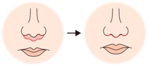 鼻の下を短くするイメージ