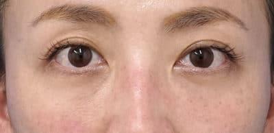 目の下脂肪取り、コンデンス脂肪注入 半年後のAfterの写真