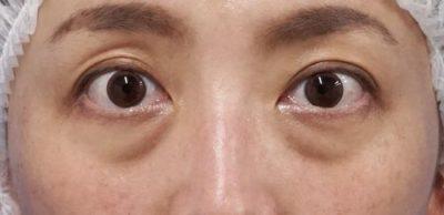 目の下脂肪取り、コンデンス脂肪注入 半年後のBefore写真