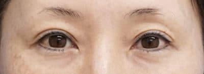 切らない眼瞼下垂+二重埋没法(切らない眼瞼下垂プレミアム) 3ヶ月後のAfterの写真