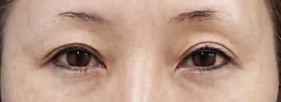 切らない眼瞼下垂+二重埋没法(切らない眼瞼下垂プレミアム) 3ヶ月後のBefore写真