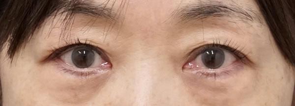 切らない眼瞼下垂 半年後