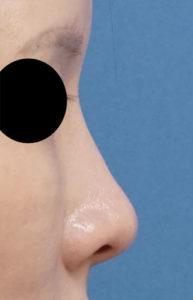 鼻クレヴィエル1週間後 右側面