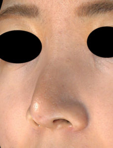 左斜め 1ヶ月後 鼻尖縮小(3D法)+軟骨移植、ストラット