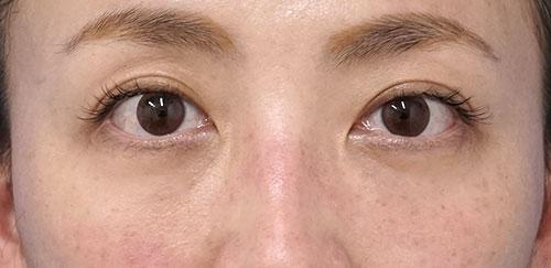 D目の下脂肪取り、コンデンス脂肪注入 半年後