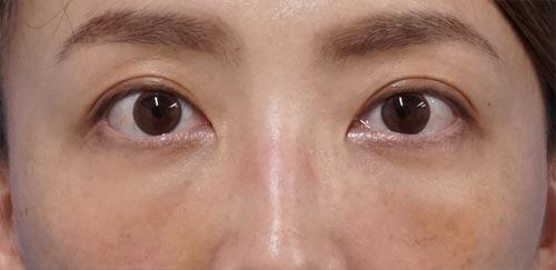 目の下脂肪取り、コンデンス脂肪注入 1週間後