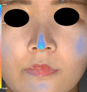 正面 色変化 鼻尖縮小(3D法)+軟骨移植