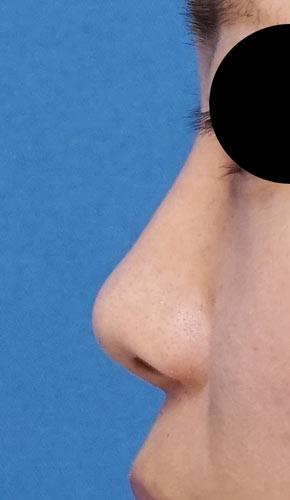 鼻尖縮小、軟骨移植 手術前 左側面