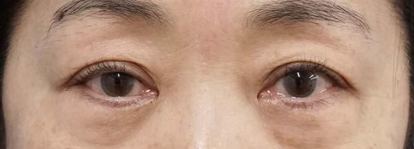切らない眼瞼下垂 手術前