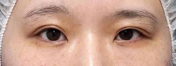 目頭切開(Z形成)、他院抜糸+二重埋没法(スマートバランス) 手術前
