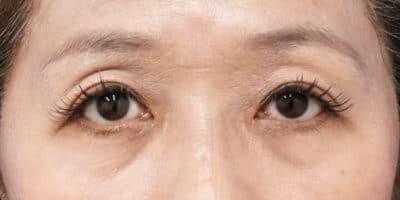 切らない眼瞼下垂 3ヶ月後のAfterの写真
