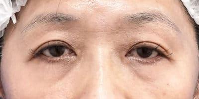 切らない眼瞼下垂 3ヶ月後のBefore写真