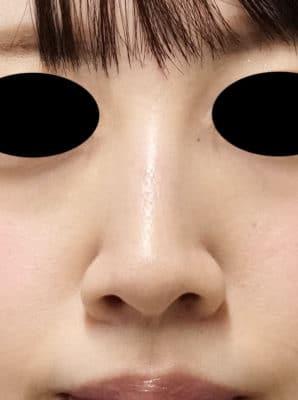 鼻翼縮小(内側法、フラップ法) 6ヶ月後のAfterの写真