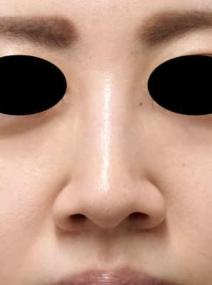 鼻翼縮小(内側法、フラップ法) 6ヶ月後のBefore写真