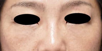 目の下の脂肪取り+コンデンス脂肪注入 3ヶ月後のAfterの写真